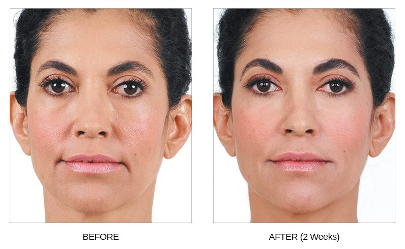 Juvederm Before & After Photos