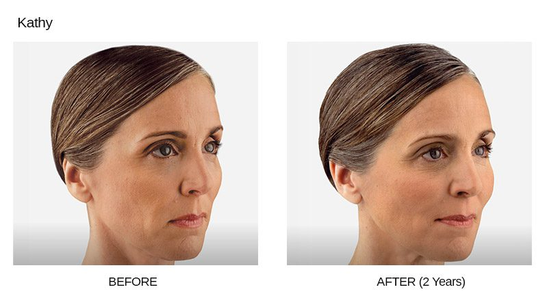 Voluma Before & After Photos