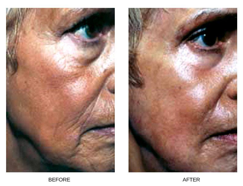 Skin Resurfacing - Oculoplastic
